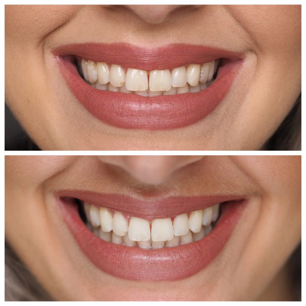 Laura Kate Lucas - Manchester Fashion, Beauty and Lifestyle Blogger | Smile brilliant Home Teeth Whitening Kit Review and Results
