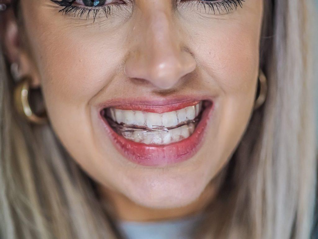 Dr. Marin Schwarz Teeth Whitening Kit